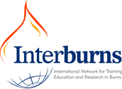 Interburns